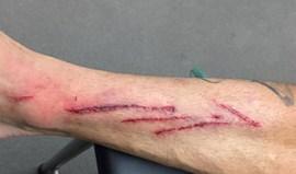 A falta de Goiano dava uma boa tatuagem? Fernando Ferreira parece pensar que sim...