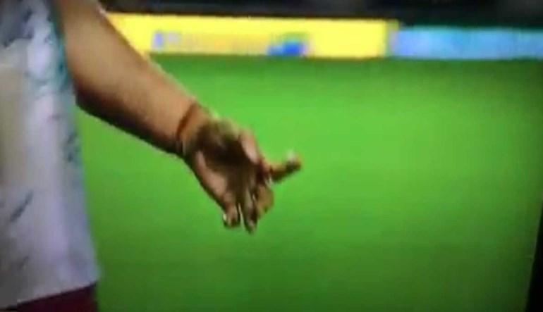 Imagens chocantes: Jogador de râguebi conseguiu jogar durante uma hora... assim