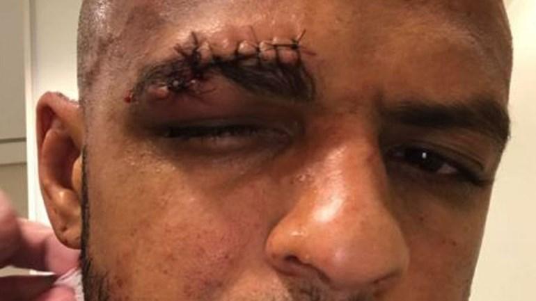 Se com 13 pontos Felipe Melo ficou assim, veja como ele ficou logo após a lesão...
