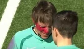 Mais um caso de violência: árbitro atacado com spray nos olhos