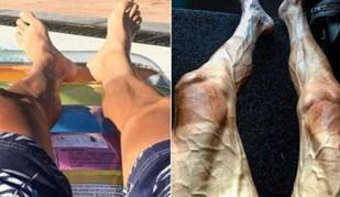 Não parece, mas estas pernas são as mesmas: assim está um ciclista no Tour....