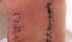 Kelly Slater mostra como está o seu pé depois de ter sido operado
