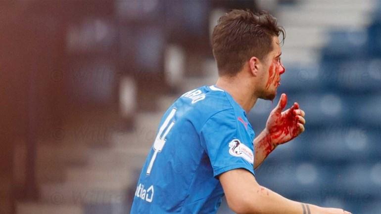 Fábio Cardoso partiu o nariz no jogo do Rangers