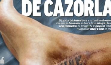 Arrepiante: assim está o pé de Santi Cazorla após oito operações