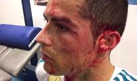 Imagens no balneário do Real mostram profundidade do corte na cara de Ronaldo