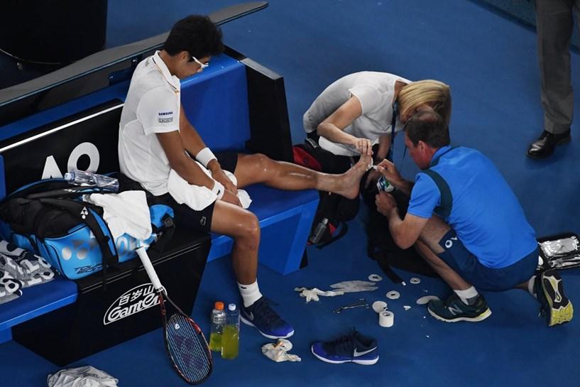 Tenista posta foto de pé ferido por bolhas no Aberto da Austrália