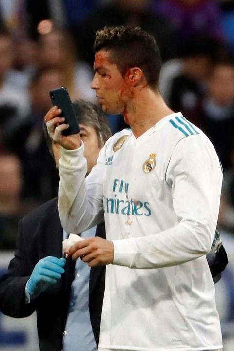 1   14 Cristiano Ronaldo ficou a sangrar após bisar... e  sacou  do iPhone  para ver o seu estado 2851e38db3df9