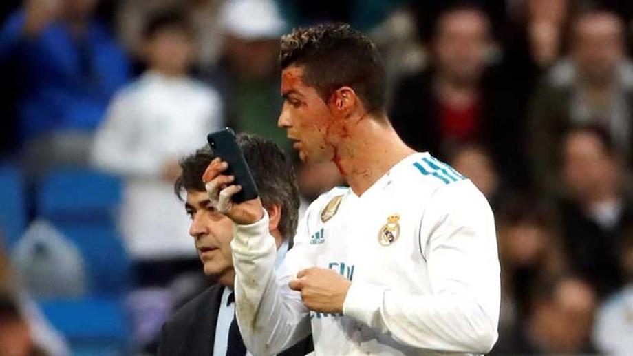 ... assistência mágica para Modric. Cristiano Ronaldo ficou a sangrar após  bisar... e  sacou  do iPhone para ver o seu estado 4a82de00e2ac4